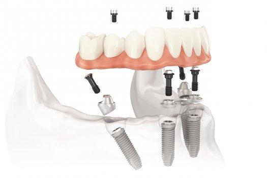 Microdent - Dentista Bologna